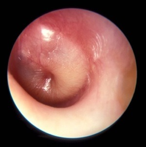 Otitis media - bulging membrane