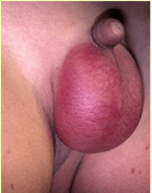 idiopathic scrotal oedema