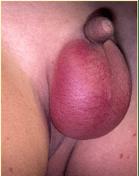 idiopathic scrotal oedema