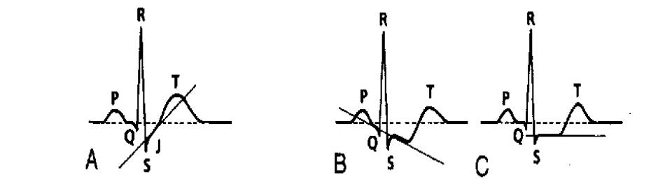 ST segment