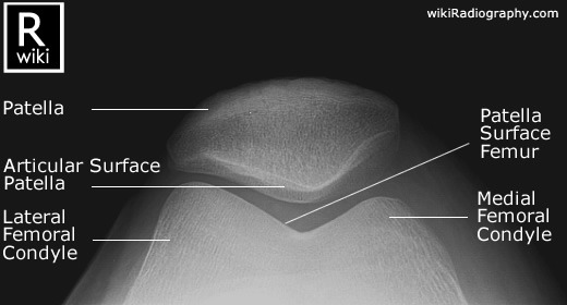 133697 likewise Knee MRI in addition Knee X Ray Interpretation additionally 710039 additionally 496170083922708214. on axial view shoulder x rays what to look for in