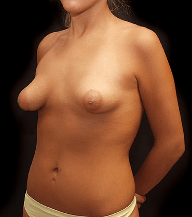 Showing xxx images for odd shaped nipples xxx
