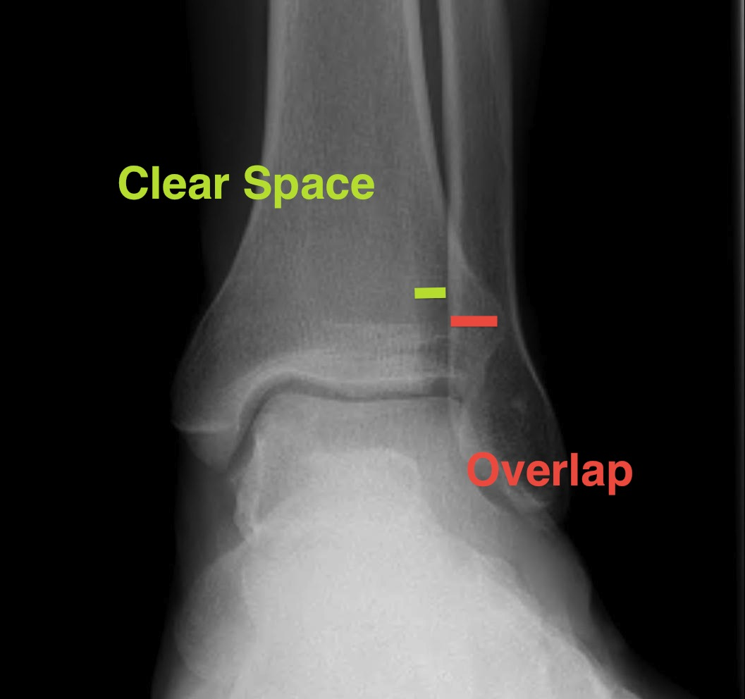 Ankle x-rays