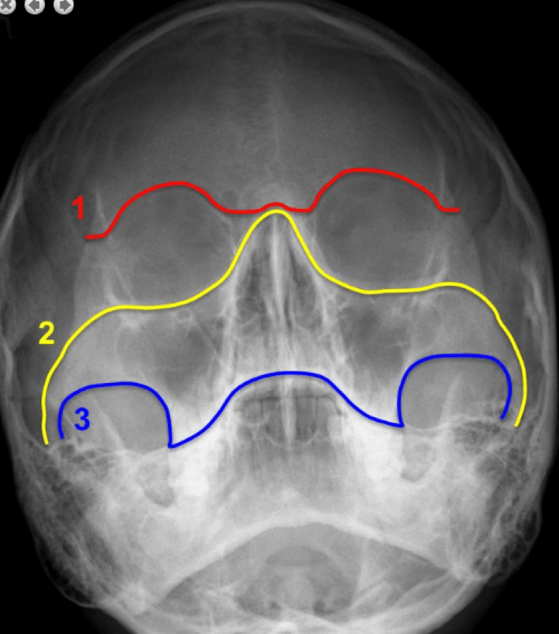 Facial Bone X Rays on frontal bone