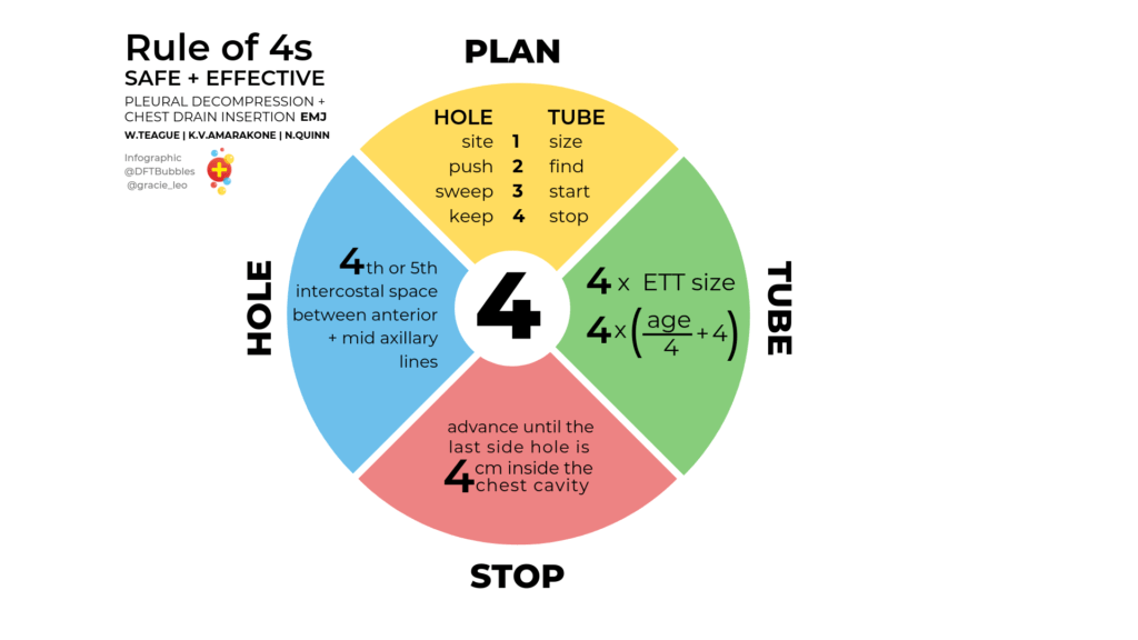 Infographic for safe insertion of chest drains