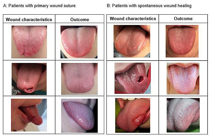 Tongue lacerations - before and after management