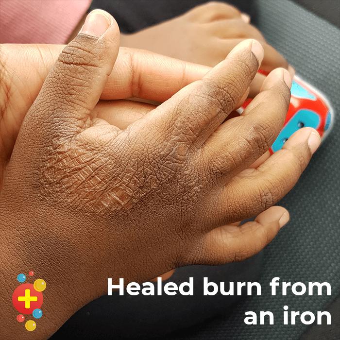 Healed burn
