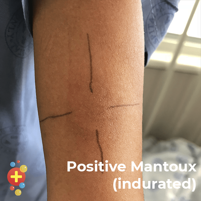 Positive Mantoux