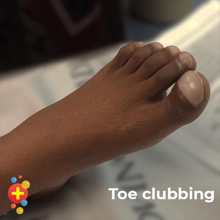 Toe clubbing