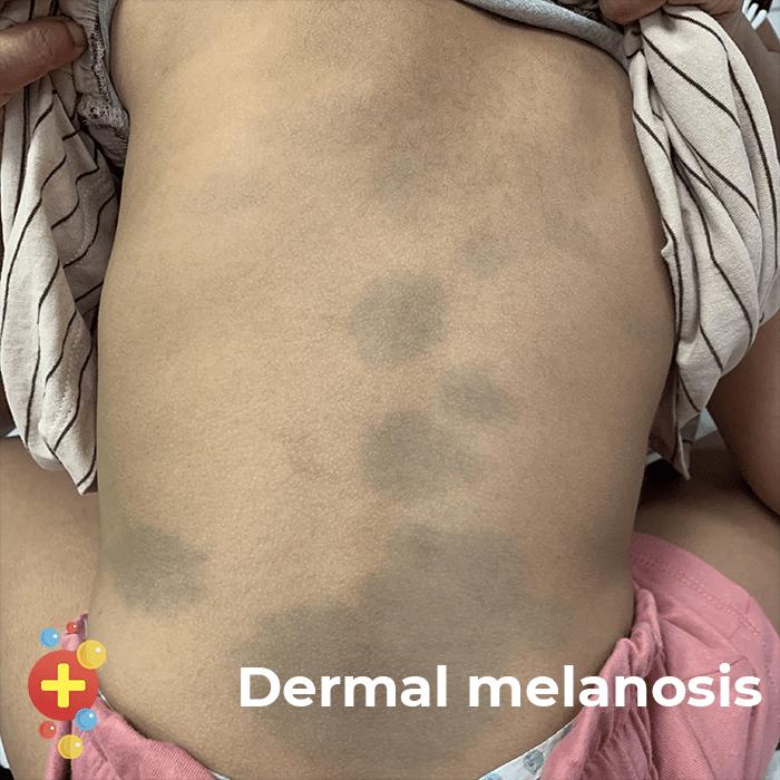 Dermal melanosis