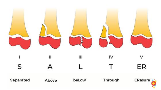 Salter-Harris classification of fractures