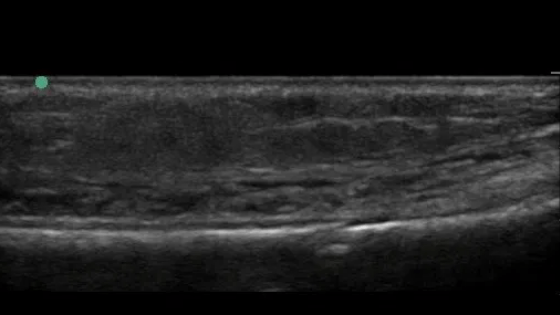 Cortical breach seen on ultrasound