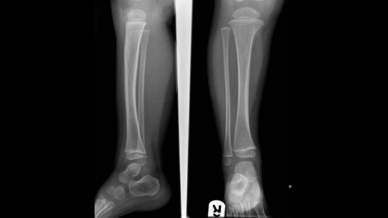 AP and Lateral of lower limb