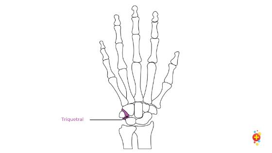 Triquestral