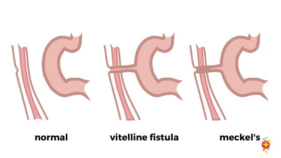 Comparison between vitelline fistula and meckel's